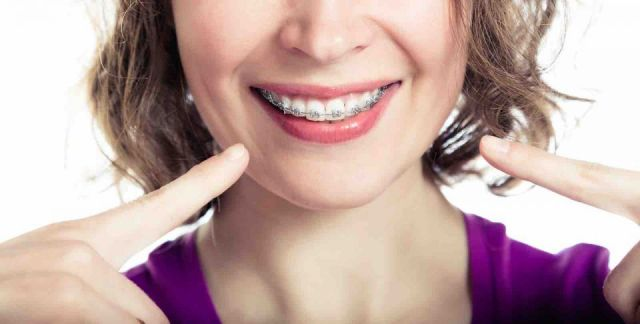 Can Adults Wear Dental Braces Too?