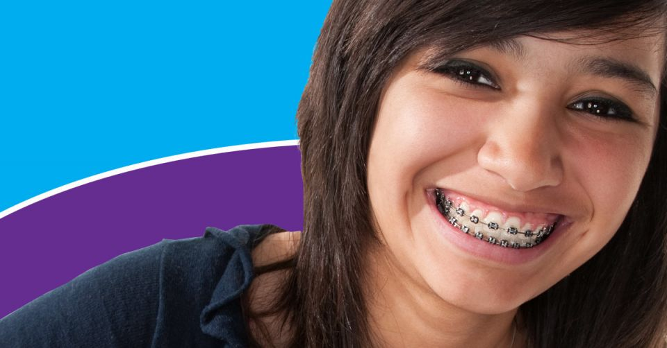 Why You Should Get Braces Early