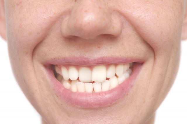 Why You May Need Braces